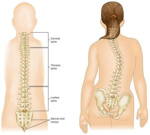 Scoliosis Treatment in Dwarka
